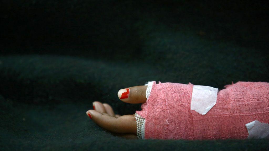 Una mujer sobrevive a un ataque con ácido por quinta vez