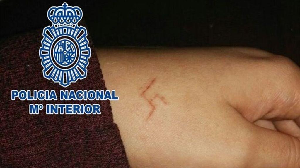 Seis detenidos por marcar una esvástica a una chica con un objeto candente