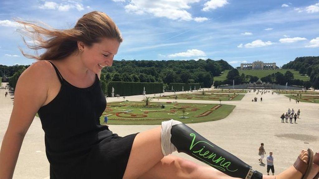 La pierna ortopédica de esta joven es la protagonista de todos sus viajes