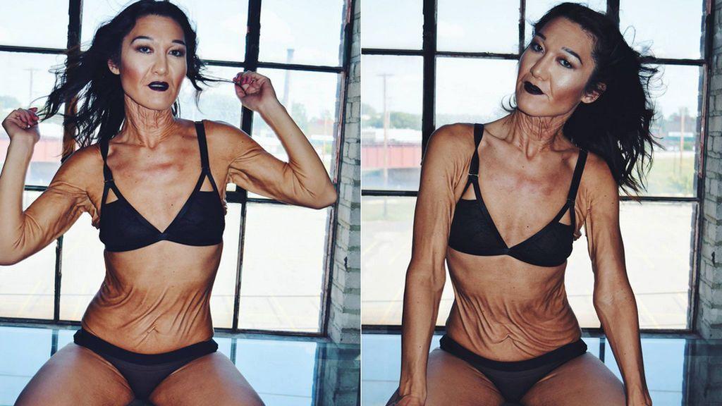 Una modelo con arrugas por una enfermedad rara rompe con los cánones de belleza