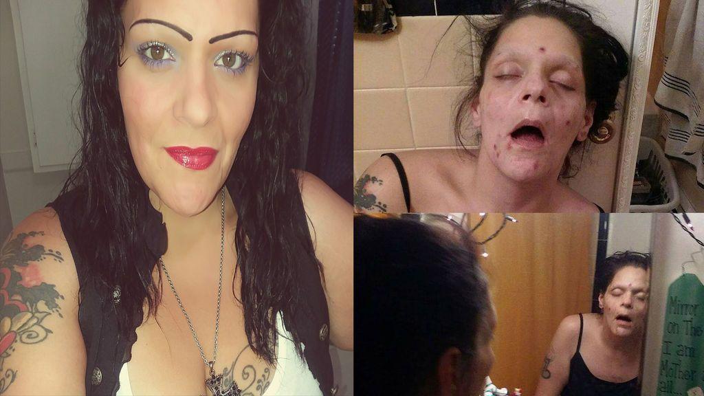 Una mujer comparte en Facebook su impactante aspecto cuando era adicta a la heroína