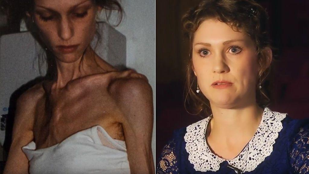 Volver de los infiernos más profundos después de la anorexia