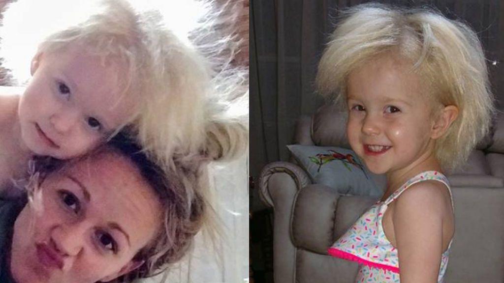 Jaili Lamb, la niña que comparte el mismo síndrome que Albert Einstein