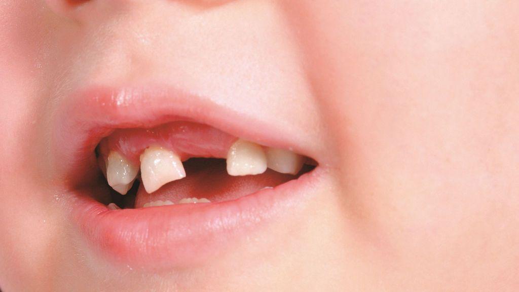 Un niño pierde un diente y la directora de su colegio le hace un vale para el ratoncito Pérez