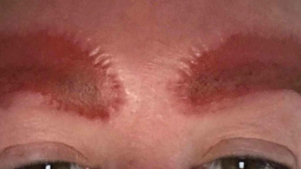 Una infección la deja sin cejas un día después de habérselas tatuado