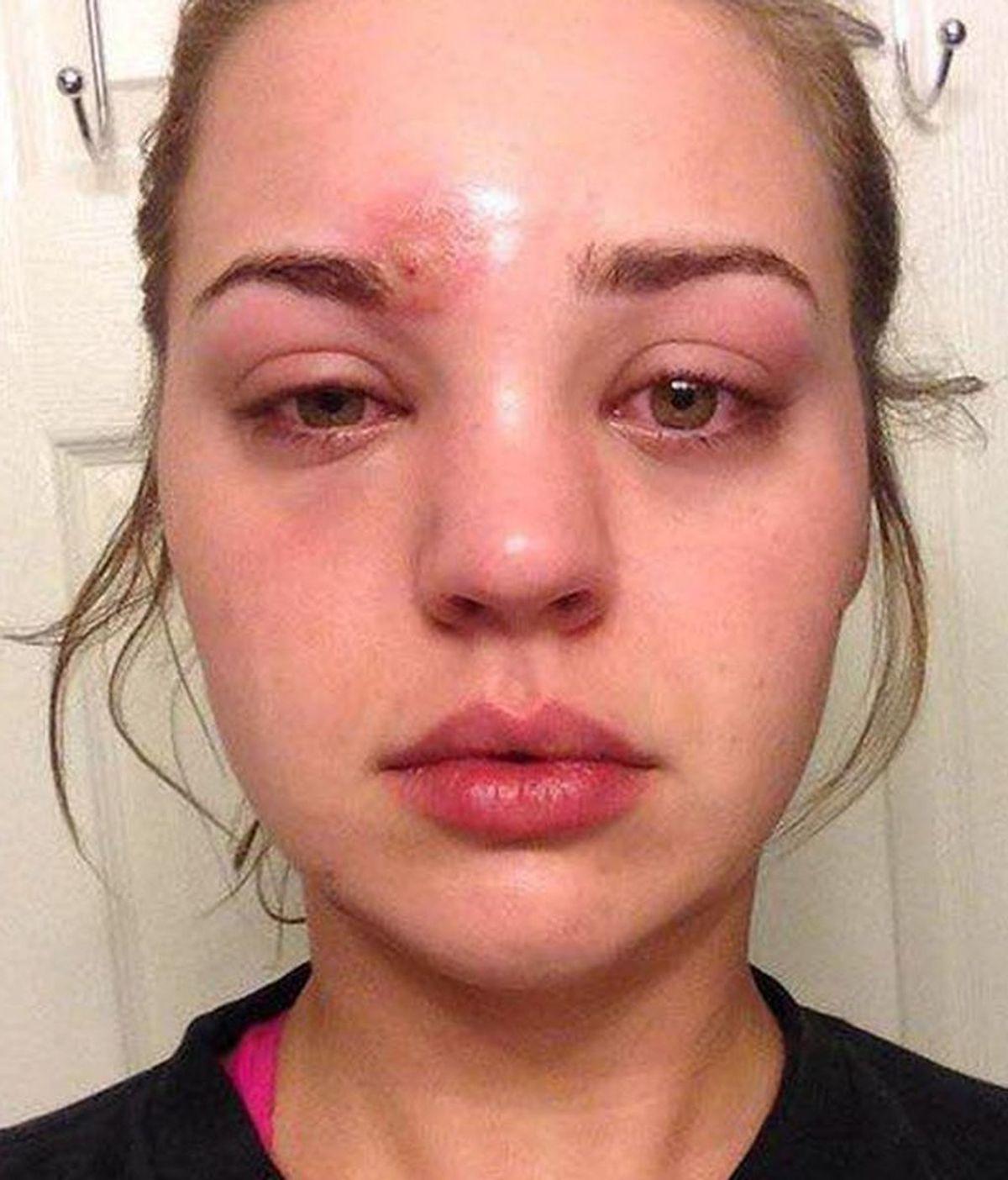 La terrible historia de Katie Wright: Una espinilla casi le cuesta la vida