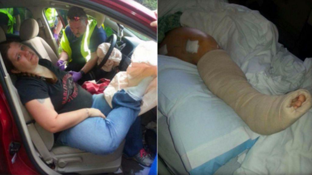 Una mujer advierte de los riesgos de poner los pies en el salpicadero del coche tras una accidente