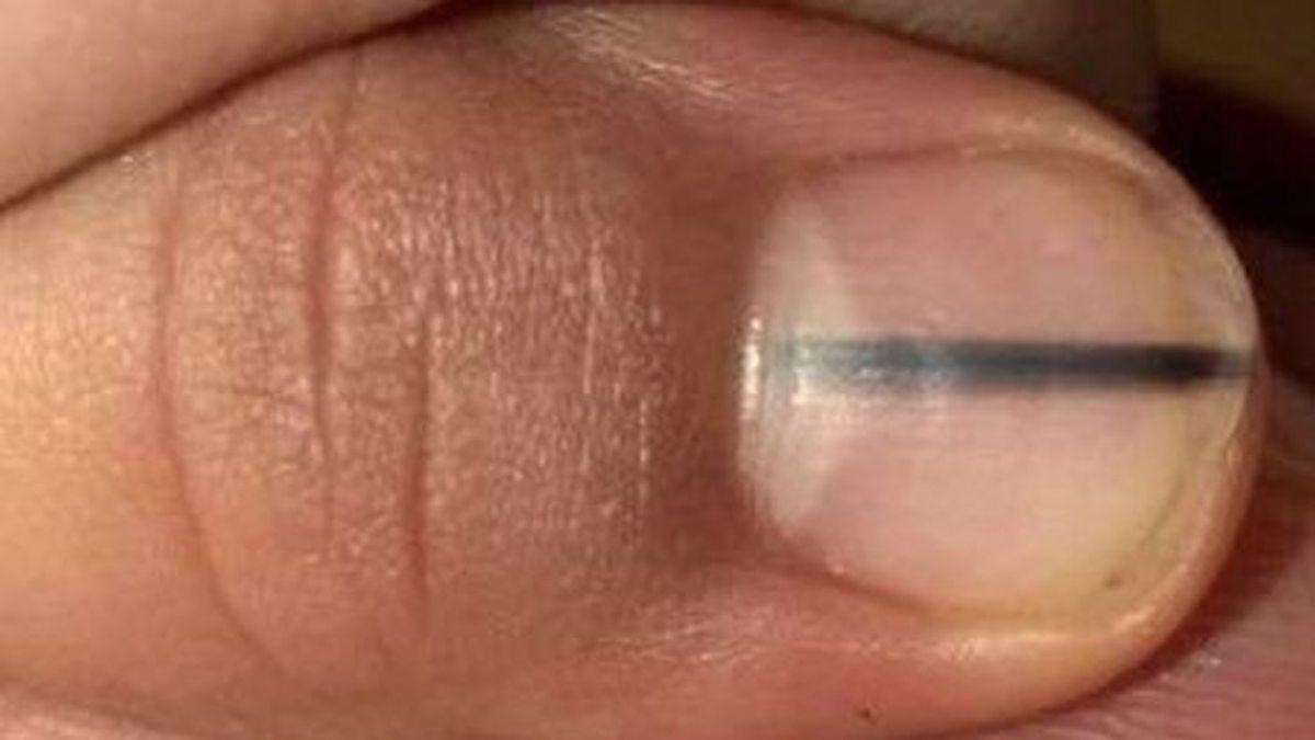 Su esteticista le diagnostica un melanoma tras observar una línea negra en su uña