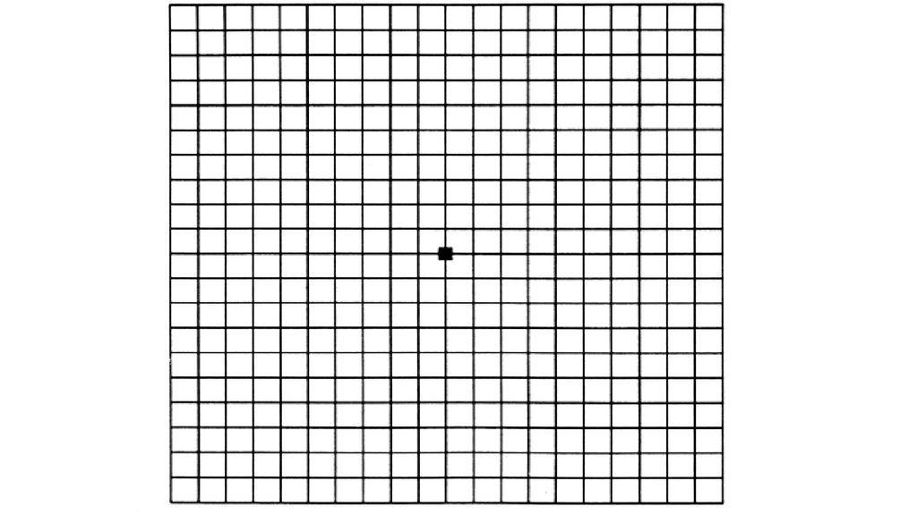 Esta sencilla prueba óptica revelará el estado de tus ojos