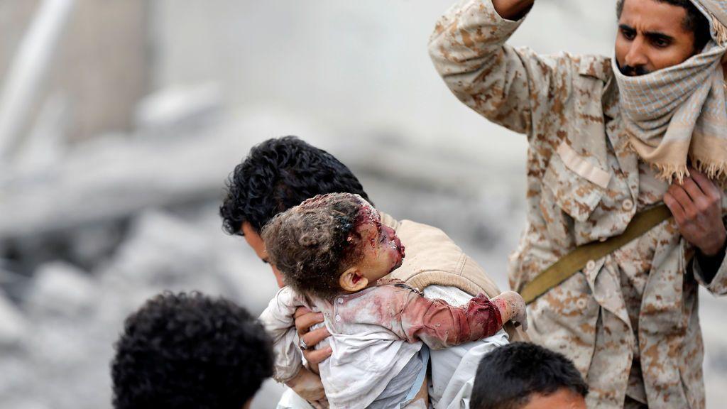 Bombardeo en Sanaa, Yemen