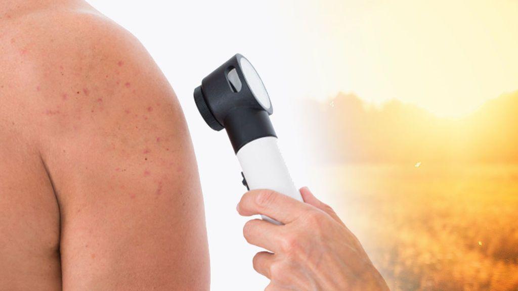 Cuatro alergias que puedes desarrollar si te pasas con el sol
