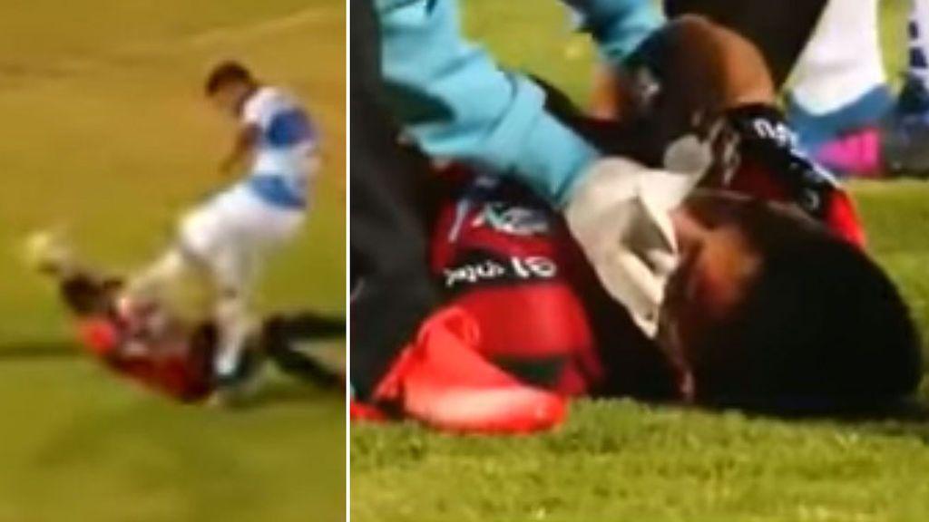 Así le quedó la cara a este defensa chileno tras recibir una patada que le desfiguró el rostro