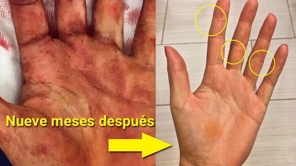 ¡La increíble recuperación de la mano de Kvitova, destrozada tras un asalto con cuchillo, para vencer a Garbiñe!