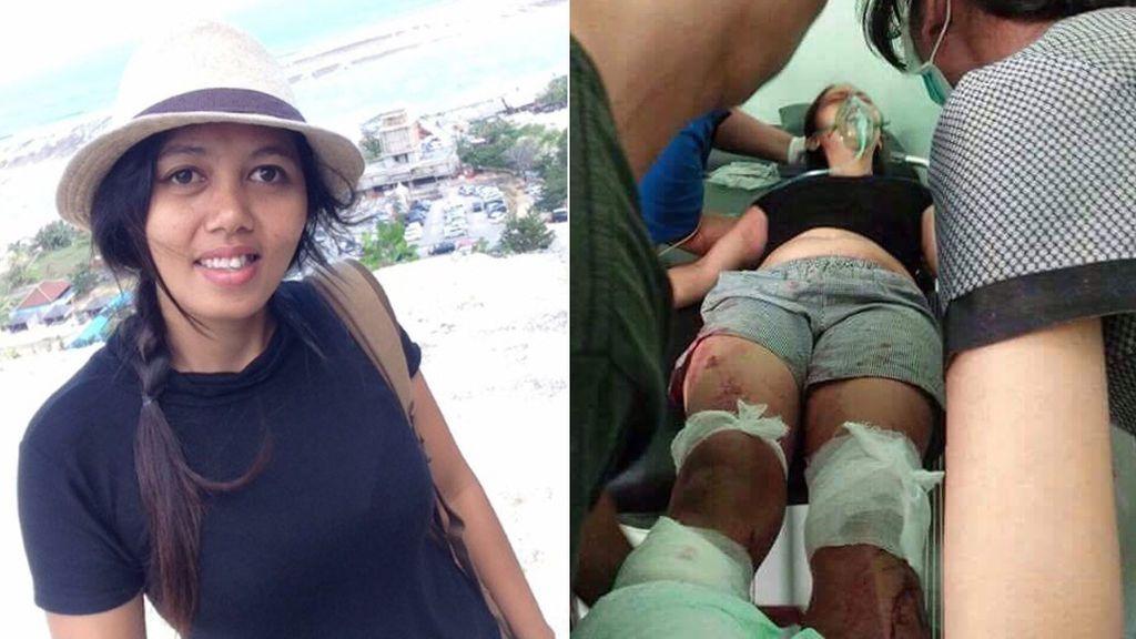 Mutila los pies a su mujer con un machete en presencia de sus dos hijos