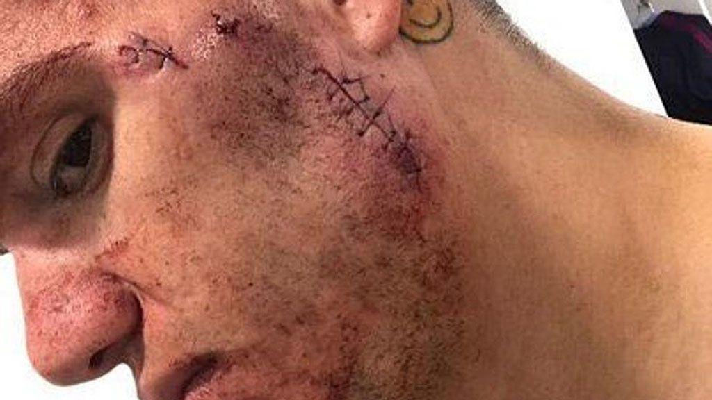 ¡Así se le quedó la cara a Ederson tras la patada de Mané en el City-Liverpool!