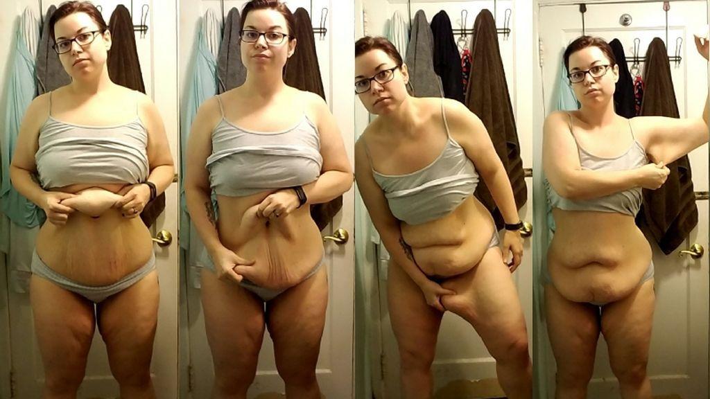 Esta mujer odia aún más su cuerpo tras someterse a una operación para perder peso