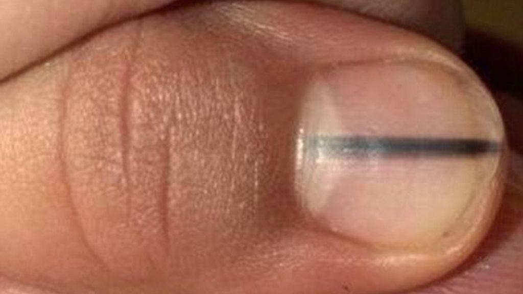 Si tienes esta raya negra en la uña puede ser algo más grave de lo ...