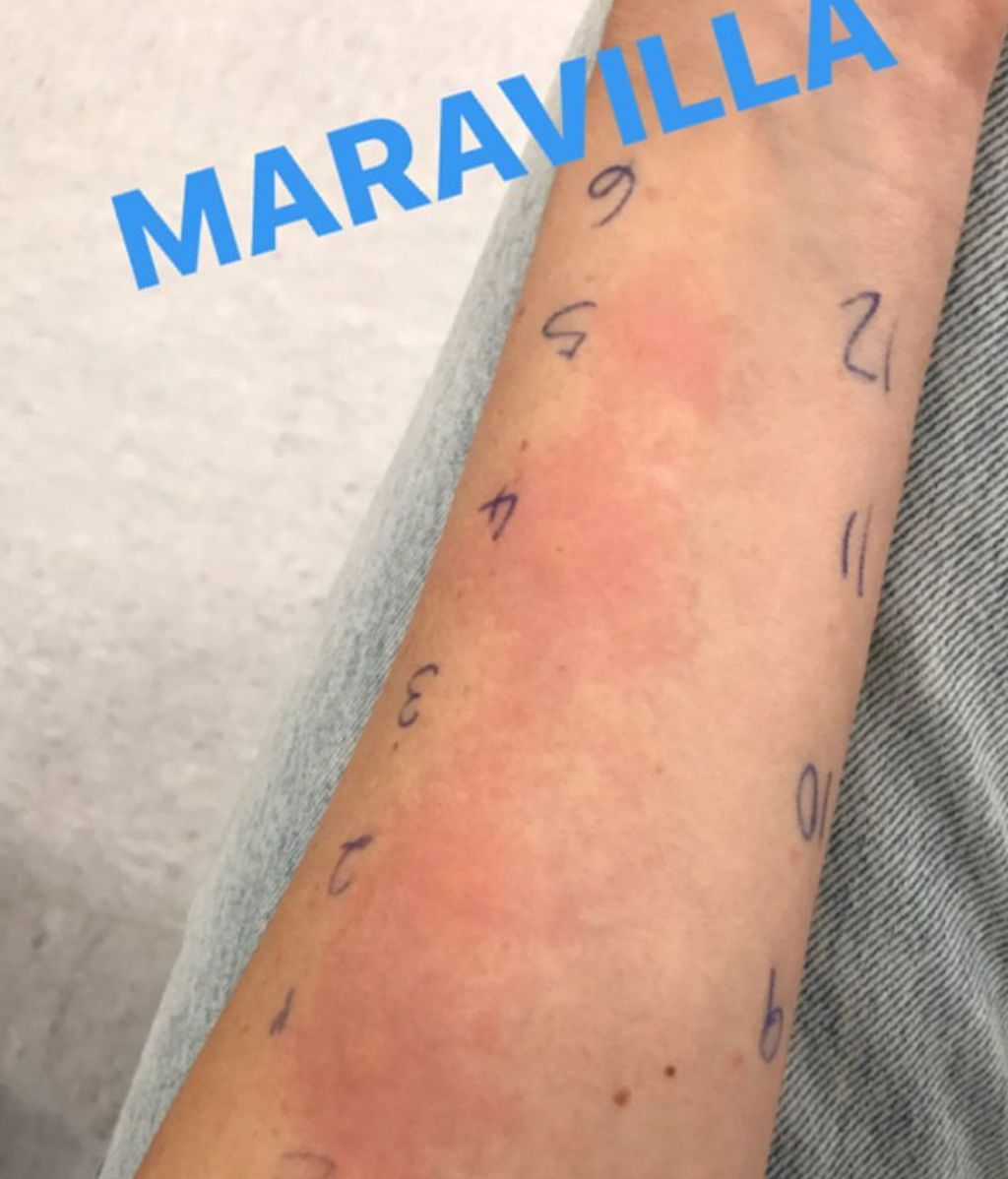 Adriana alergia 2