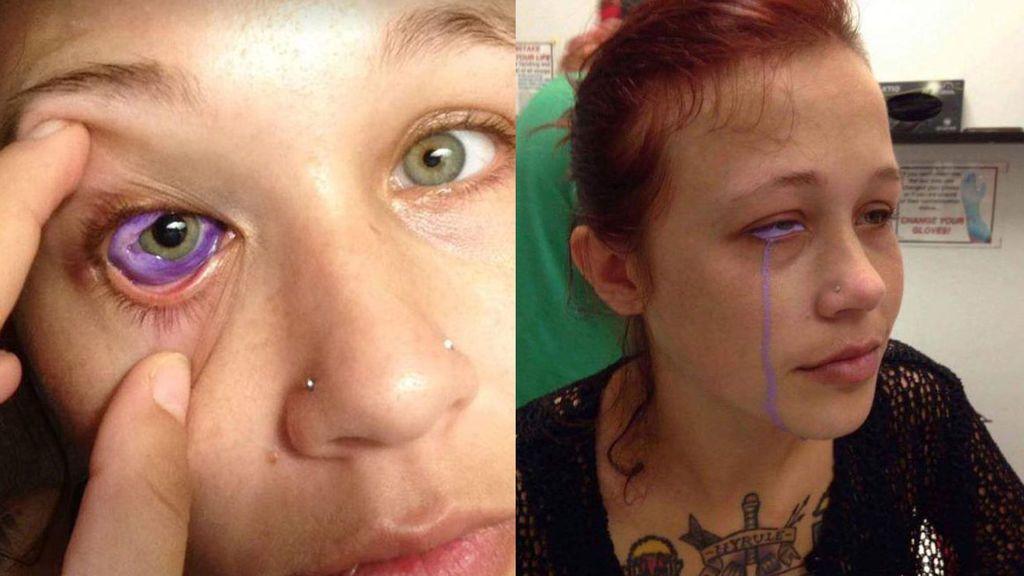 El tatuaje en el ojo de una modelo que le ha provocado pérdida de visión