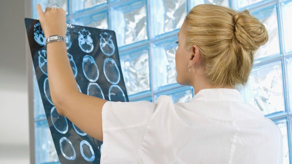Neurólogos diseñan un plan para prevenir del alzhéimer
