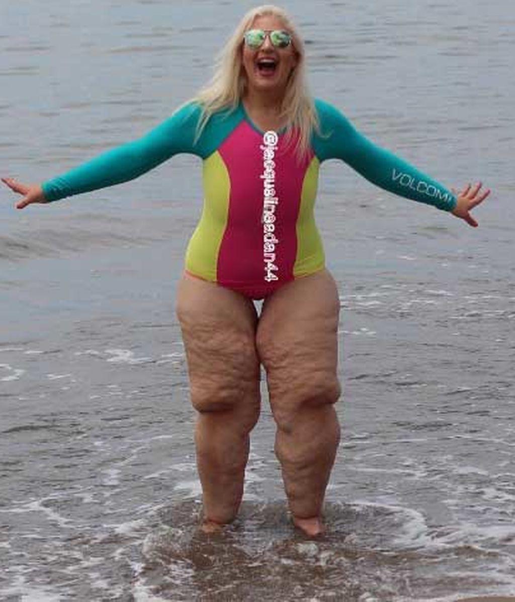 Desata las burlas de la gente cuando se queda en bañador tras perder 158 kilos de peso