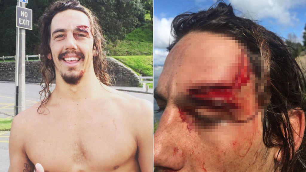 Descubre qué tiene un tumor cerebral por una escalofriante herida haciendo surf