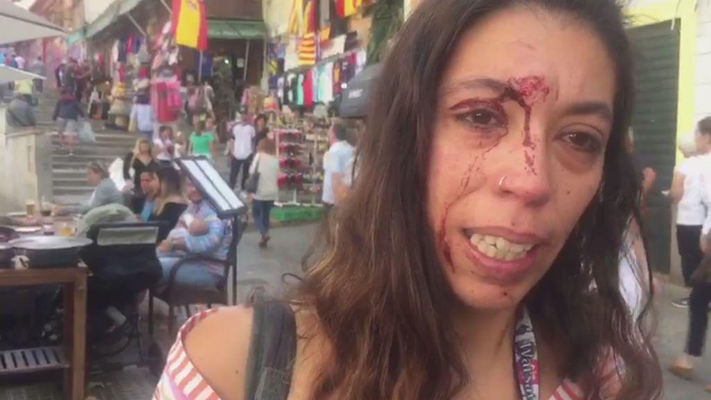 """Denuncia una agresión en una manifestación en Palma: """"Les llamé fachas y me tiraron una piedra"""""""