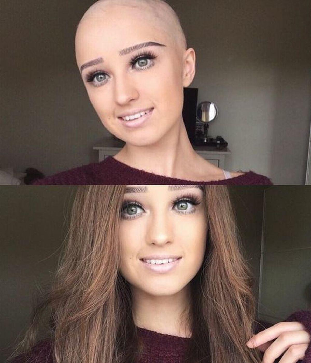 Comparte sus selfies calva para romper los cánones de belleza y triunfa en Instagram