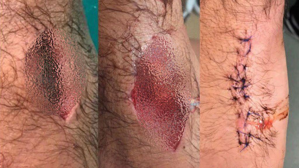 Así es el mordisco de un león: el jugador de rugby Scott Baldwin muestra su herida… ¡sobrecogedor!