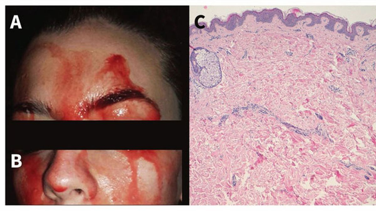 Médicos estudian el caso de una joven italiana que suda sangre por las manos y la cara