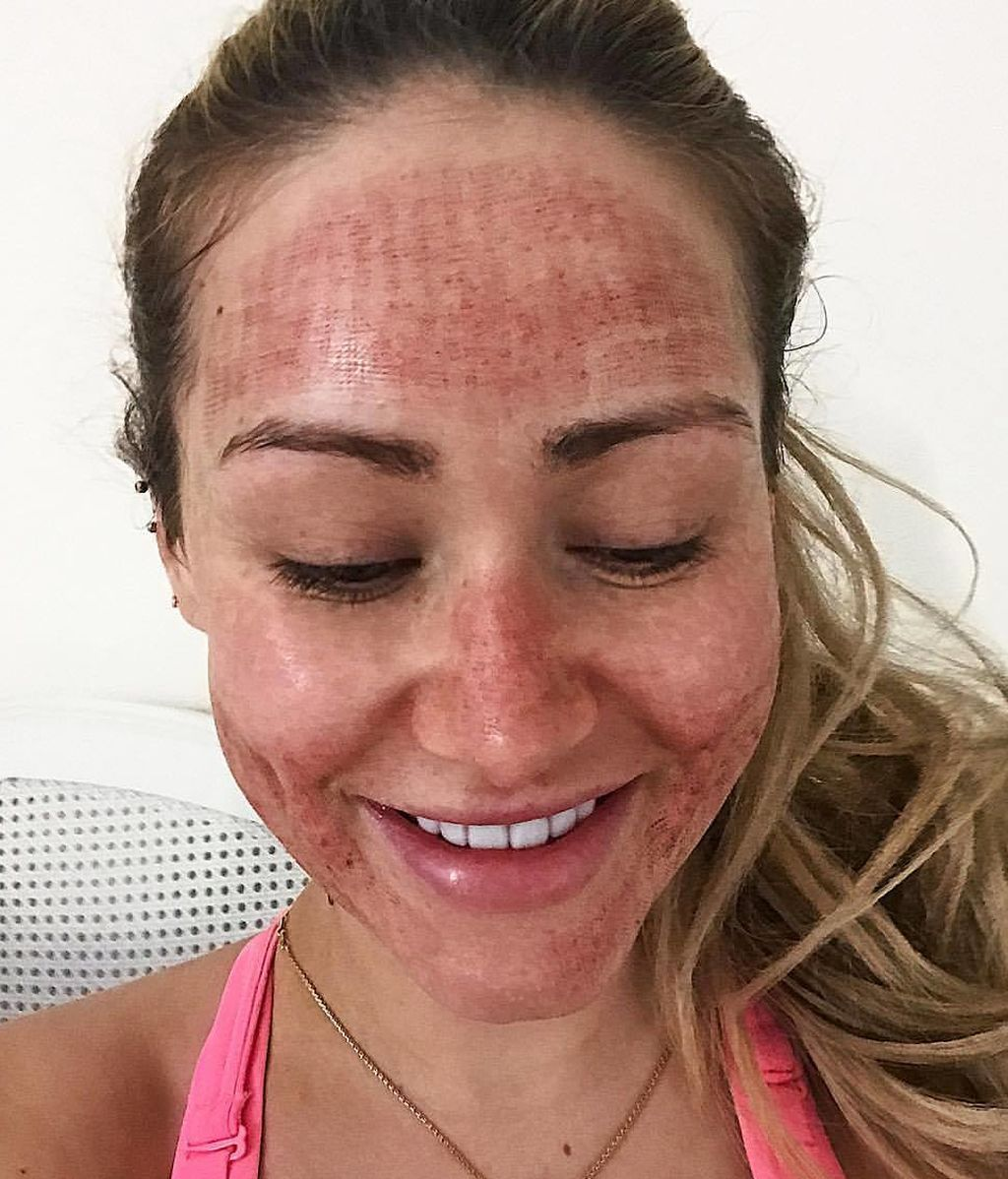 Una estrella de la red revela que ha logrado acabar con su acné facial gracias a un tratamiento de láser