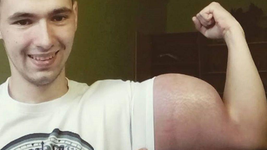 Un exmilitar aumenta masivamente el tamaño de sus brazos inyectándose un peligroso aceite en los músculos