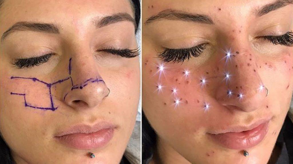 Nueva tendencia en tatuajes: pecas que forman una constelación en la cara