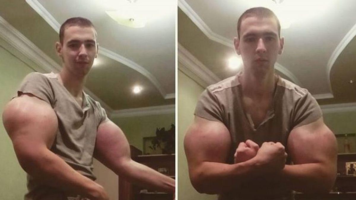 Un fisioculturista se inyecta aceite en los bíceps para parecerse a Popeye