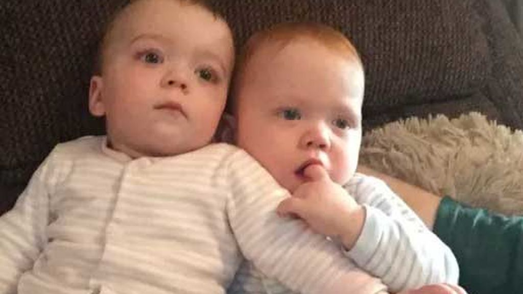 Austin y Ava, unos mellizos que sobreviven gracias al 'abrazo de rescate'