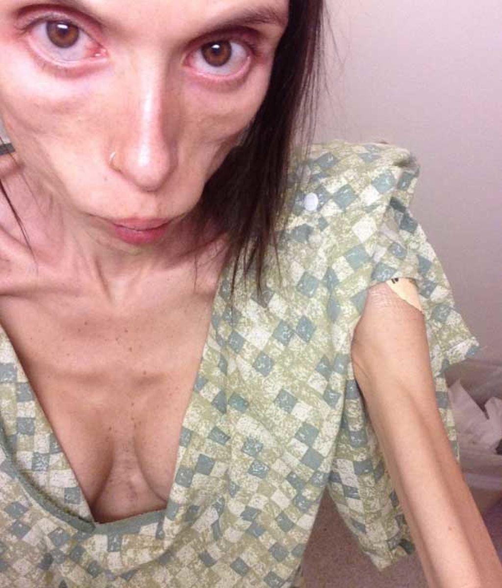 """Desesperada tras 16 años enferma de anorexia: """"Tiene que haber una forma de sanar"""""""