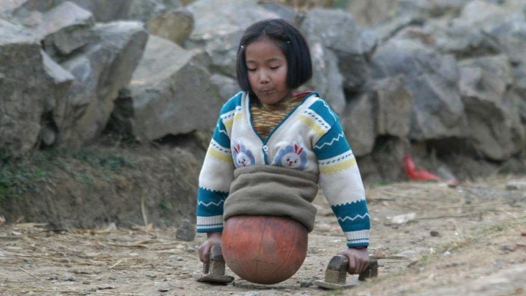 La increíble historia de la niña sin piernas y con una pelota de baloncesto pegada al cuerpo