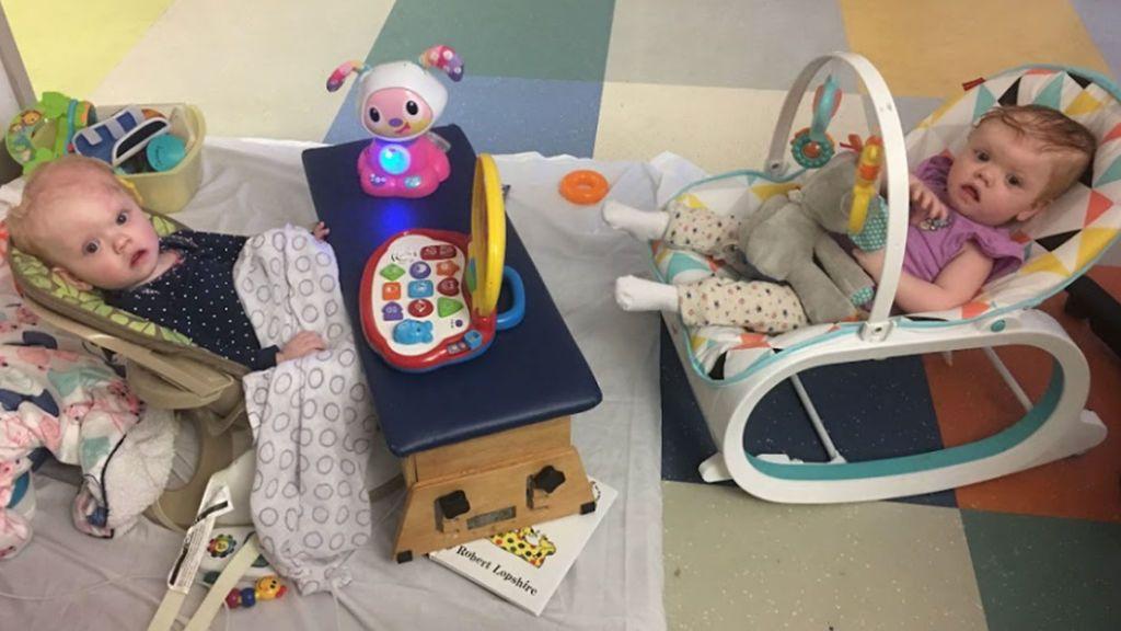 Salen del hospital las gemelas operadas tras nacer unidas por la cabeza