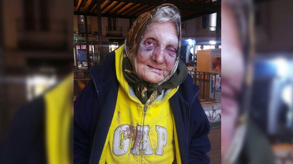 Golpean brutalmente a una mujer sin hogar de 84 años en Madrid