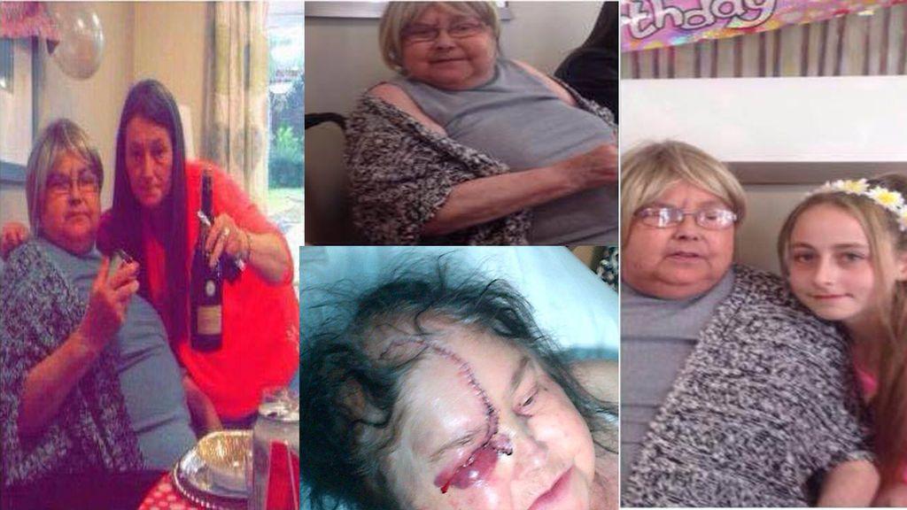 Pide justicia por la muerte de su madre accidentada con una sierra mecánica olvidada unos por obreros