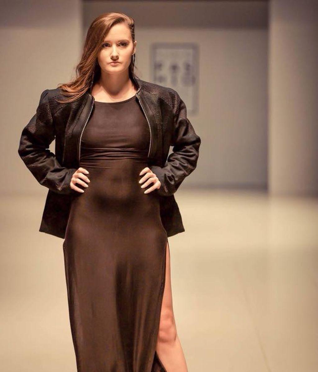 Su sueño de ser modelo se desploma por padecer endometriosis