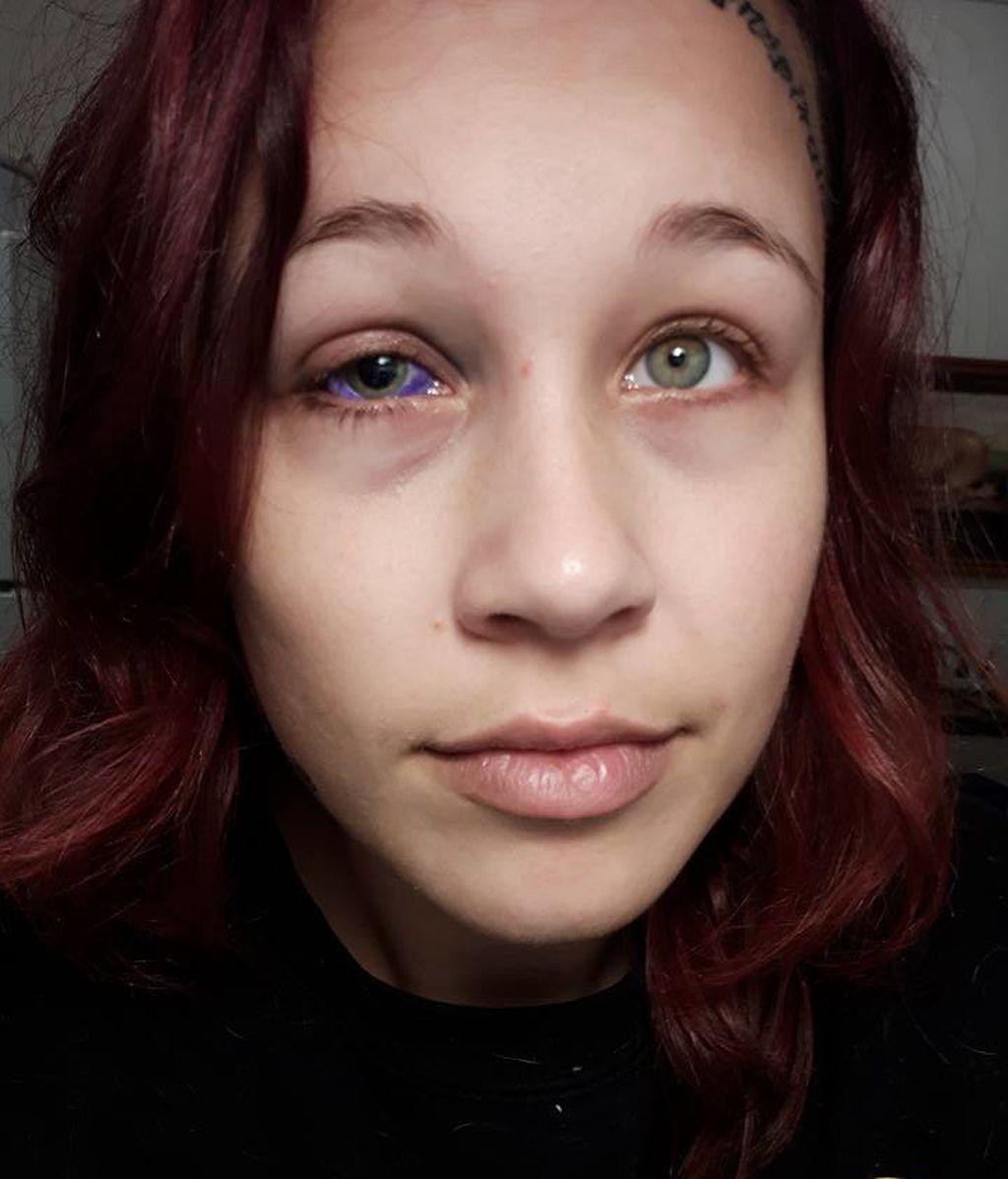 La modelo que se tatuó el globo ocular podría perder el ojo