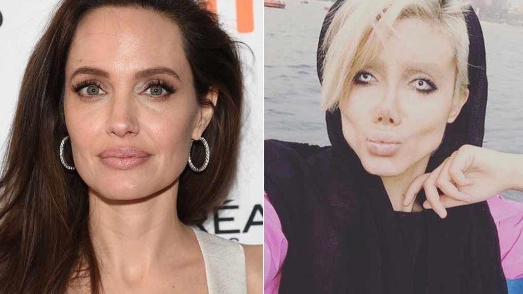 Cincuenta operaciones para ser Angelina Jolie y termina pareciendo la novia cadáver