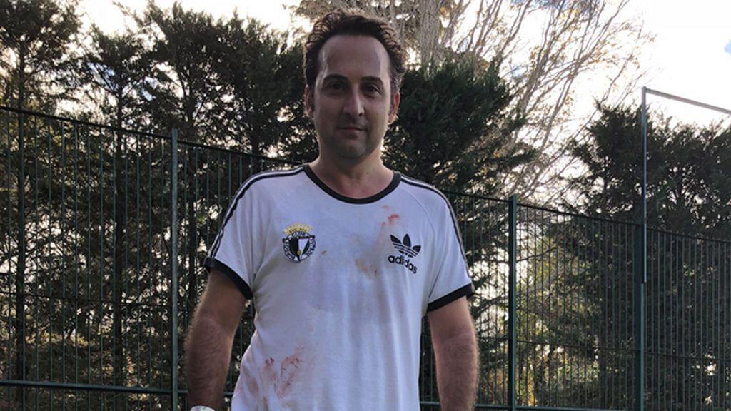 Iker Jiménez sube una foto con la camiseta ensangrentada y ...