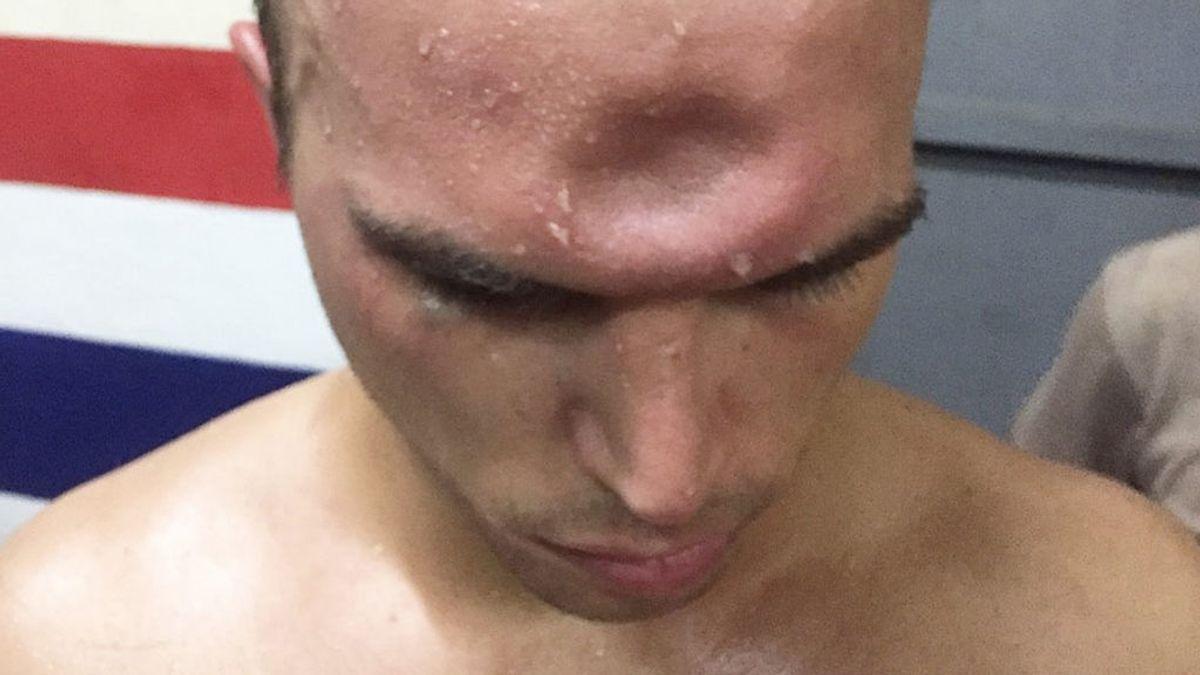 Un luchador de Muay Thai sufre una desagradable lesión en la frente por un codazo