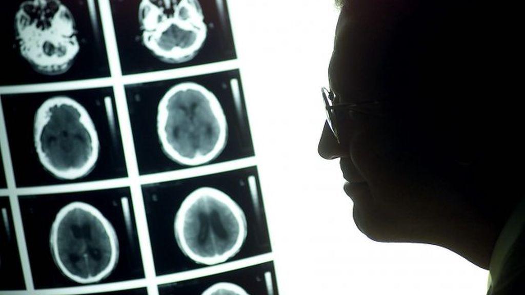 Las cinco cosas que puedes hacer para reducir el riesgo de padecer cáncer
