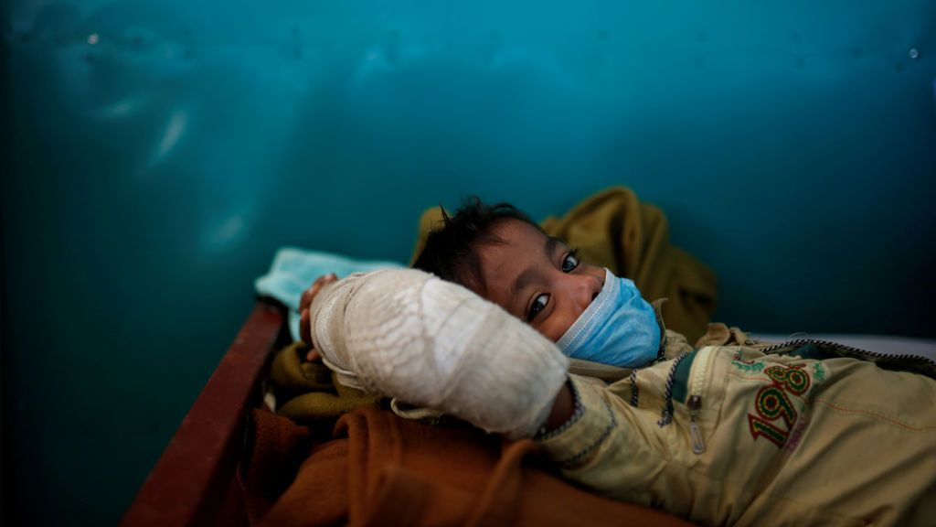 Un refugiado rohingya de 6 años se recupera de la difteria en una clínica de MSF en Bangladesh