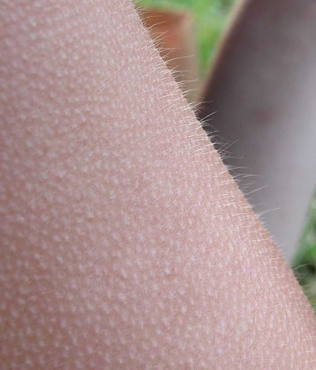 Si se te pone la piel de gallina cuando escuchas música es porque tu cerebro es especial