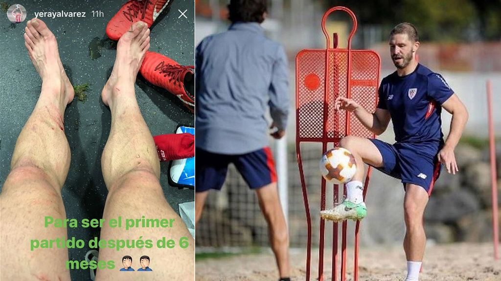Golpes que no duelen: Yeray disputa su primer partido tras vencer al cáncer y muestra sus heridas en redes 💪