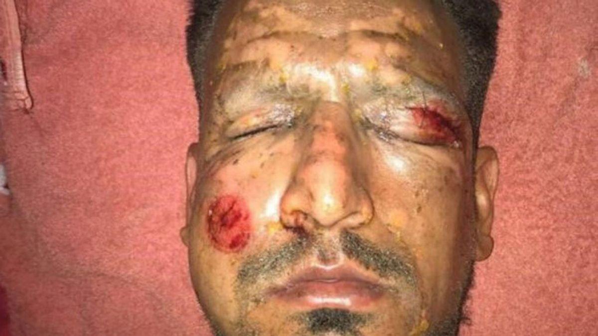 Un futbolista manipula cohetes en las fiestas de Navidad y termina con importantes heridas en la cara